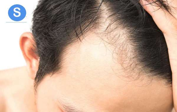 What are the different causes which trigger the problem of hair loss and balding?